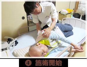 (4)施術開始